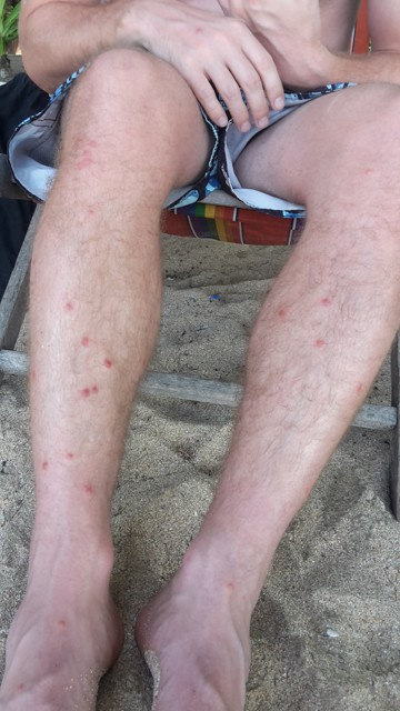 Ausschlag nach Denguefieber in Thailand